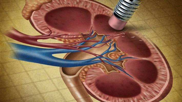 Έλεγχος Λειτουργίας των Νεφρών